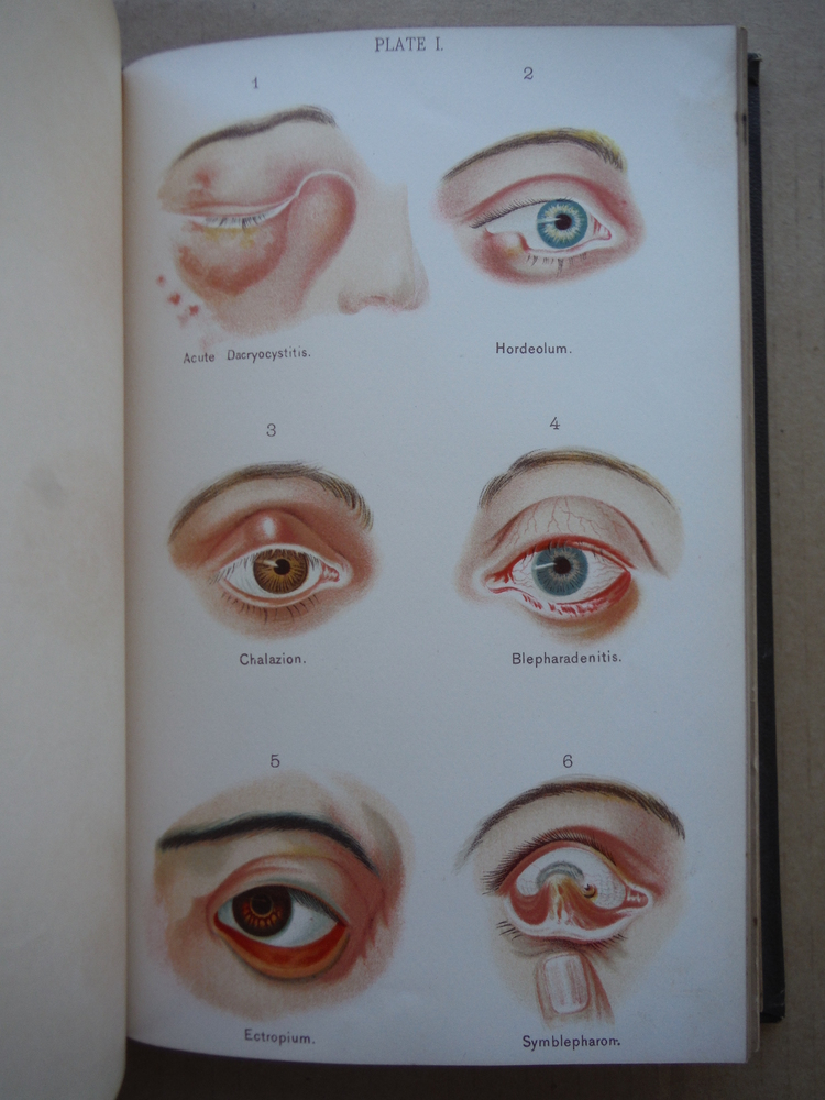 Image 3 of A manual on diseases of the eye and ear: For the use of students and practitione