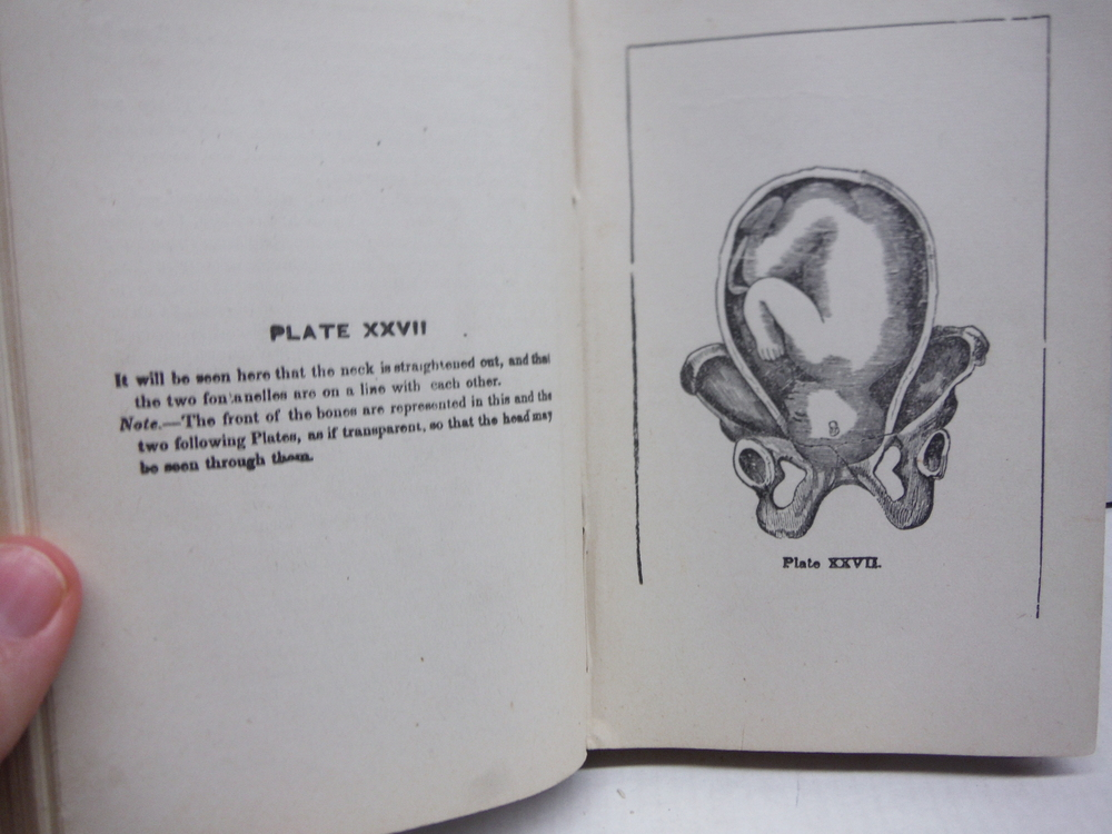 Image 2 of The matron's manual of midwifery,: And the diseases of women during pregnancy an